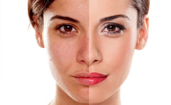How to Reduce Melanin in Skin Permanently
