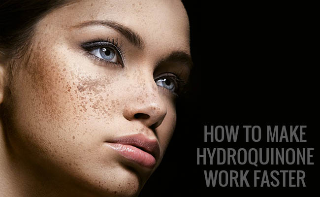 How to Make Hydroquinone Work Faster
