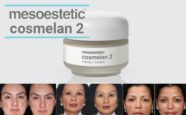 Mesoestetic Cosmelan 2 review