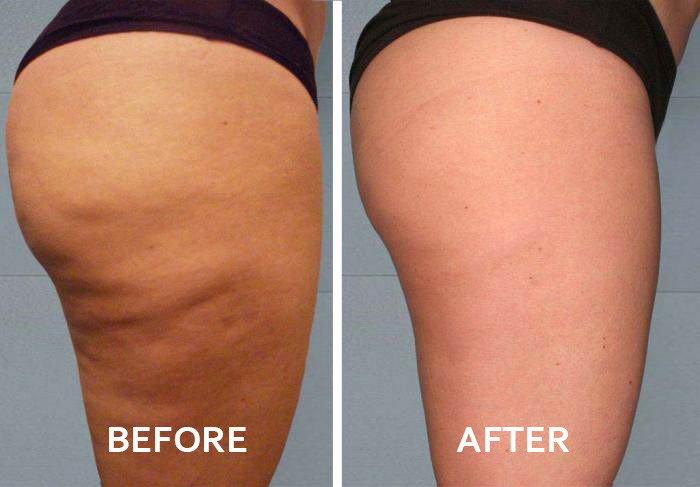 Just Natural body nutritive serum before and after
