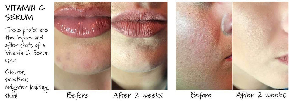 mad hippie vitamin c serum before and after