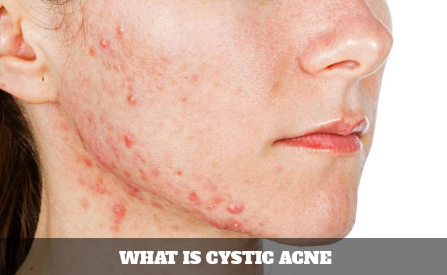 What is cystic acne