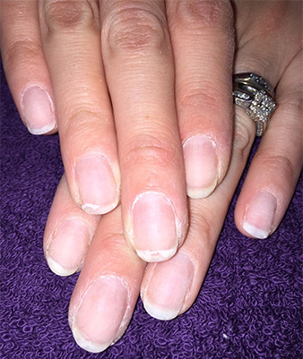 How to recognize damaged nails